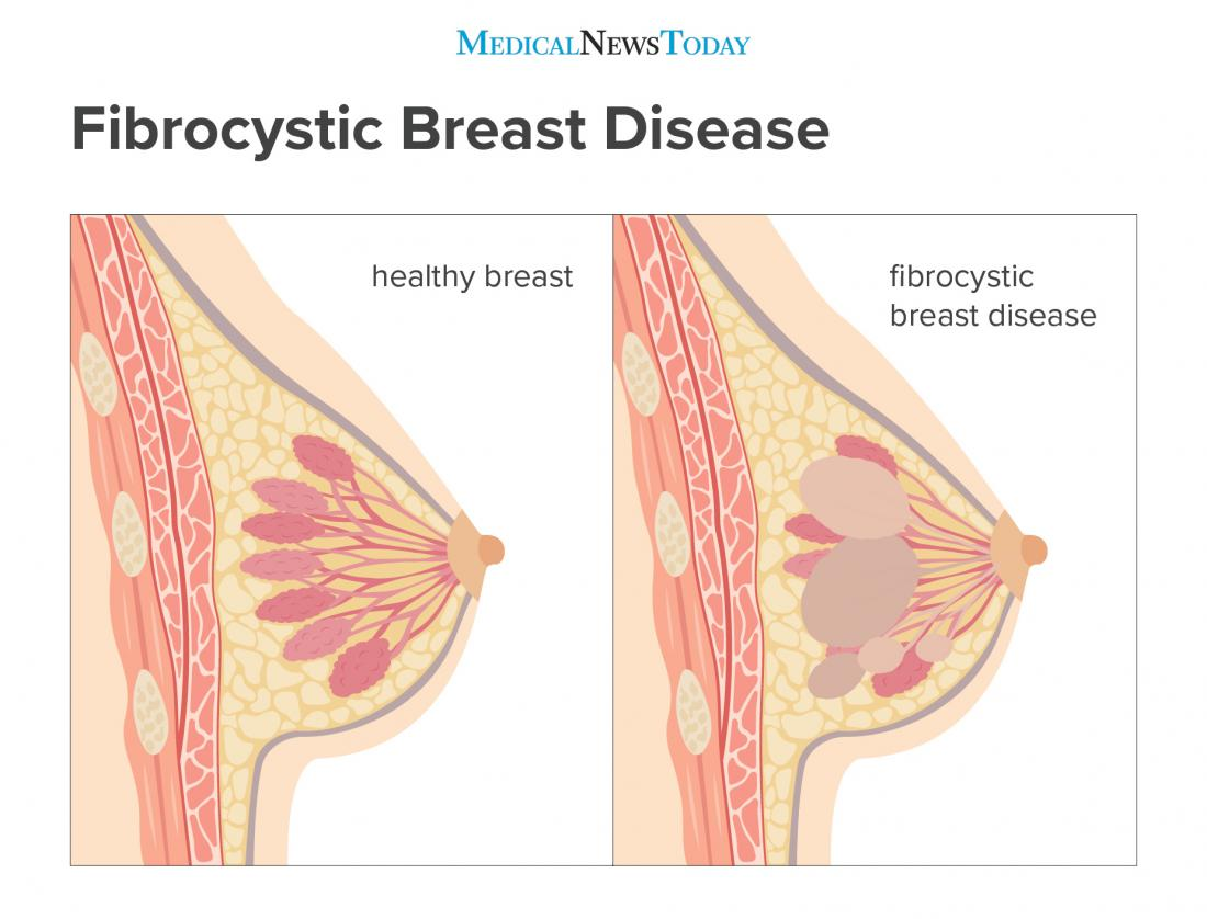 fibrocystic breast disease infographic <br>Image credit: Stephen Kelly, 2018</br>