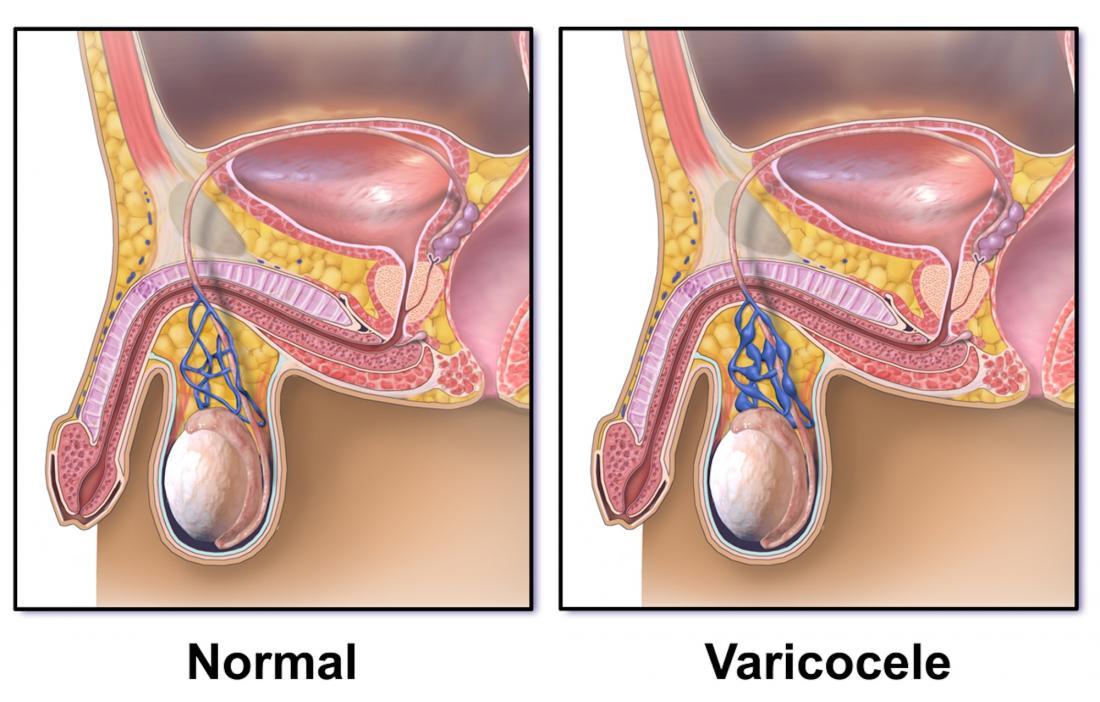 Diagram of a varicocele <br>Image credit: BruceBlaus, 2015</br>