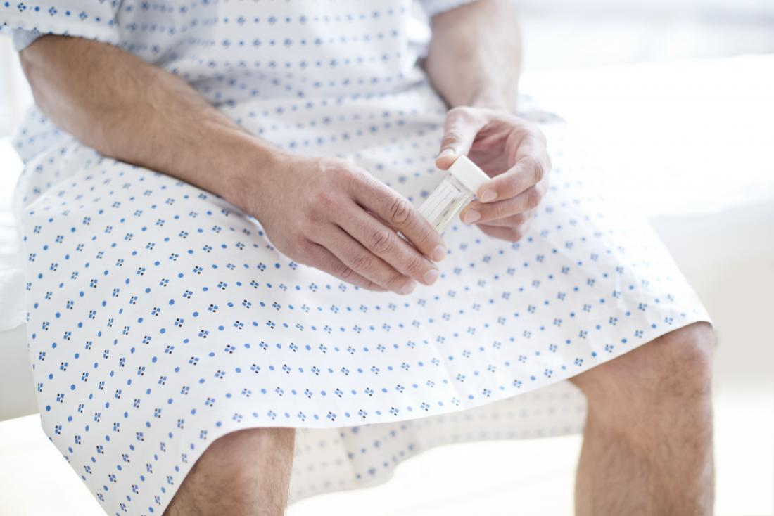 Man in hospital gown holding sample pot for sperm analysis